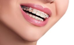 Dental Braces For Beautiful Smile
