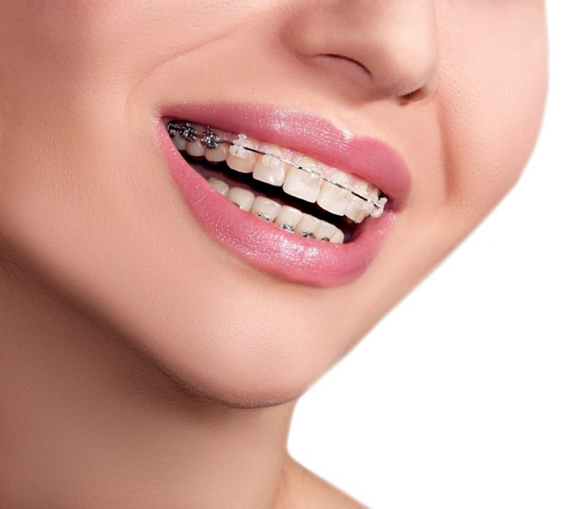 Dental Braces For Beautiful Smile
