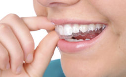 Are Dental Braces Really Beneficial For Me?